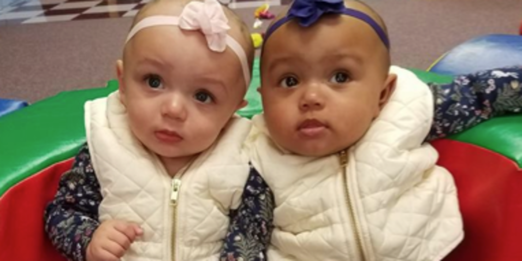 These Adorable Twins Were Born With Two Different Skin ...