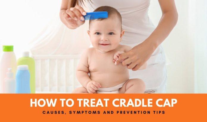 cradle cap treatment